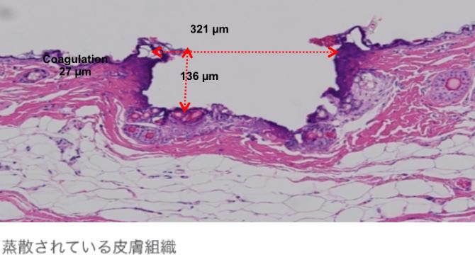 蒸散されている皮膚組織