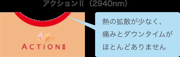 アクションⅡ(2940nm)熱の拡散が少なく、痛みとダウンタイムがほとんどありません。