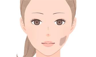 扁平母斑(へんぺいぼはん)