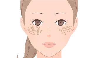 ADM(Aquired Dermal Melanocytosis/後天性メラノサイトーシス)