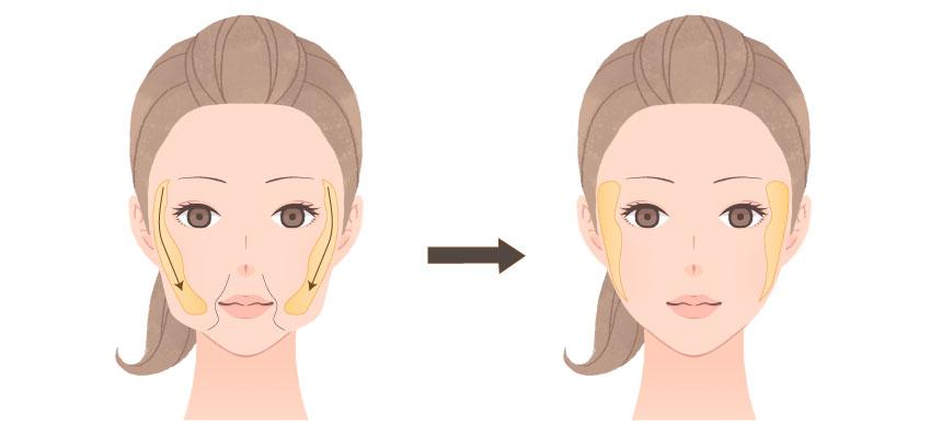 頬脂肪(バッカルファット)除去術