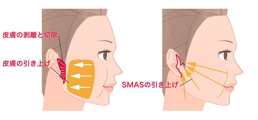 フェイスリフト(SMASリフト)手術の特徴