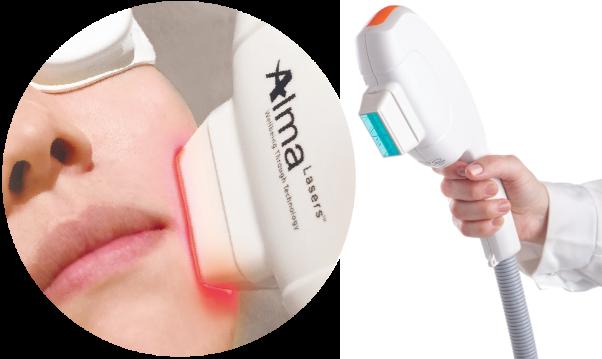 ファームアップ美容「光治療」切らずに、疲れ顔 たるみ顔に効果