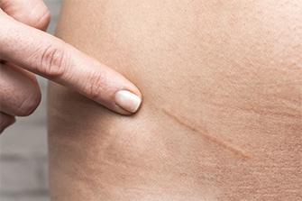 傷跡修正治療の特徴