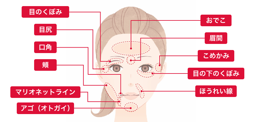 ヒアルロン酸注入シワ取り 適用部位 目のくぼみ、目尻、口角、頬、マリオネットライン、アゴ(オトガイ)、おでこ、眉間、こめかみ、目の下のくぼみ、ほうれい線