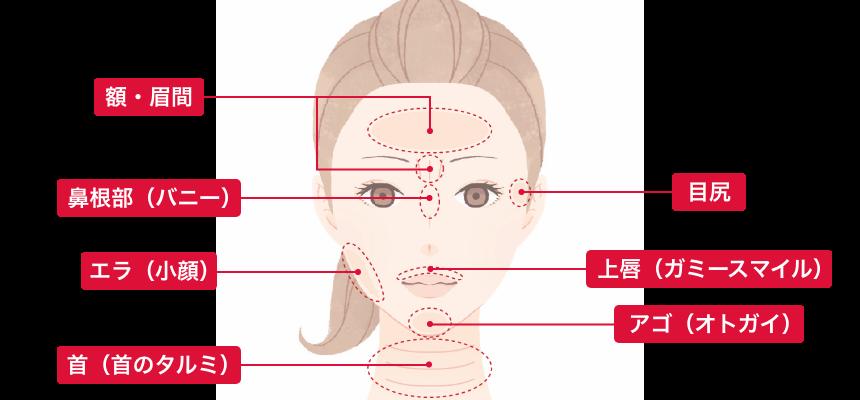 シワ取り注入 適用部位 額・眉間、鼻根部(バニー)、エラ(小顔)、首(キビのタルミ)、目尻、上唇(ガミースマイル)、アゴ(オトガイ)