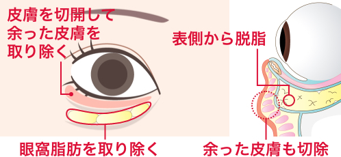 目の下のたるみ取り+脂肪取りで改善する方法