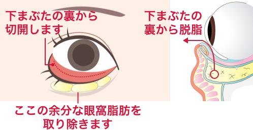 下まぶたの裏側からの脂肪取りで改善する方法