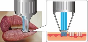 特徴2 無理なく角質をはがして、表皮を入れ替える唇レーザー