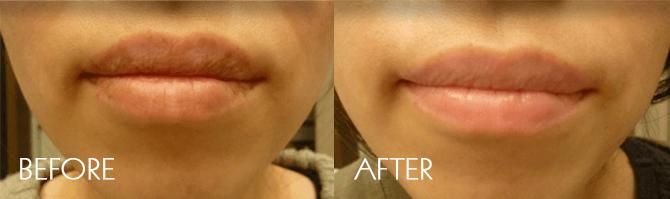 唇レーザーの症例