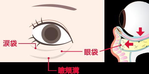 目の下のたるみ切開手術
