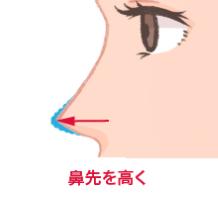 鼻先を高く