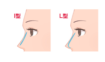 隆鼻術インプラント(シリコンプロテーゼ法) I型 L型