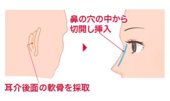 耳介後面の軟骨を採取 鼻の穴の中から切開し挿入