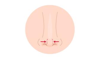 鼻尖形成術(だんご鼻解消)
