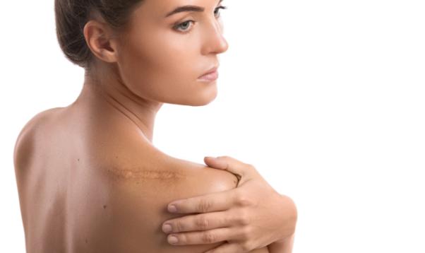 リストカット、根性焼き、手術跡など、お悩みの消したい傷跡修正