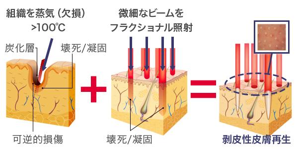 傷跡修正フラクショナルレーザー治療の特徴