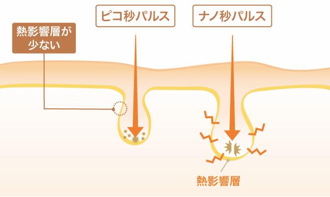 ピコ秒パルスはナノ秒パルスにくらべ熱影響が少ない