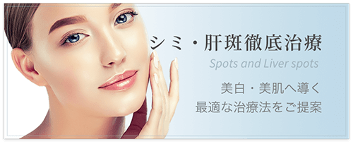 シミ・肝斑徹底治療 美白・美肌へ導く最適な治療法をご提案