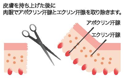 剪除法の特徴